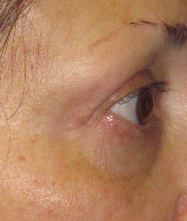 Blepharoplasty Gallery - Patient 4883051 - Image 4