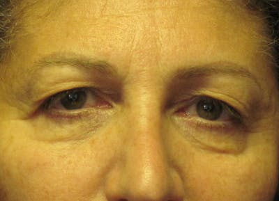 Blepharoplasty Gallery - Patient 4883053 - Image 1