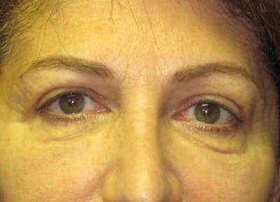Blepharoplasty Gallery - Patient 4883053 - Image 2