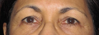 Blepharoplasty Gallery - Patient 4883060 - Image 1