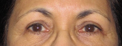 Blepharoplasty Gallery - Patient 4883060 - Image 2