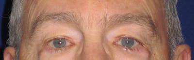 Blepharoplasty Gallery - Patient 4883067 - Image 1