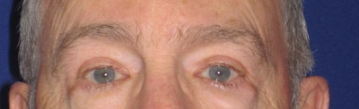 Blepharoplasty Gallery - Patient 4883067 - Image 2