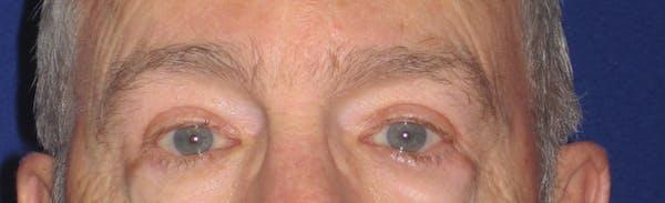 Blepharoplasty Gallery - Patient 4883067 - Image 2