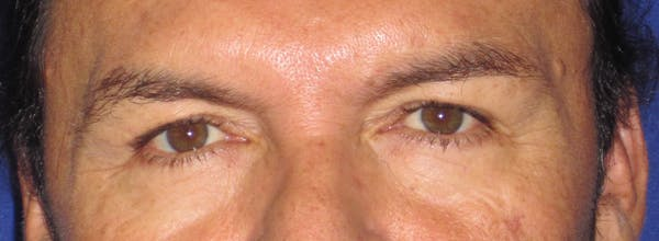 Blepharoplasty Gallery - Patient 4883072 - Image 1