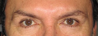 Blepharoplasty Gallery - Patient 4883072 - Image 2