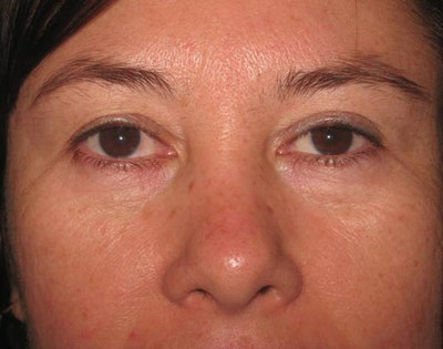 Blepharoplasty Gallery - Patient 4883076 - Image 1