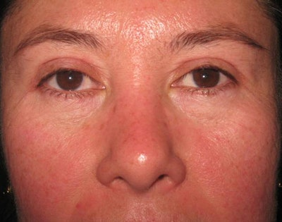 Blepharoplasty Gallery - Patient 4883076 - Image 2
