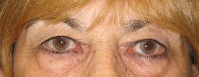 Blepharoplasty Gallery - Patient 4883080 - Image 1