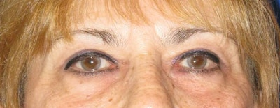 Blepharoplasty Gallery - Patient 4883080 - Image 2