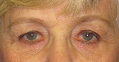 Blepharoplasty Gallery - Patient 4889460 - Image 1