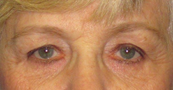 Blepharoplasty Gallery - Patient 4889460 - Image 1
