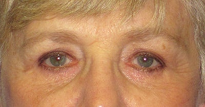 Blepharoplasty Gallery - Patient 4889460 - Image 2