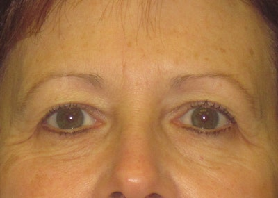 Blepharoplasty Gallery - Patient 4889465 - Image 1