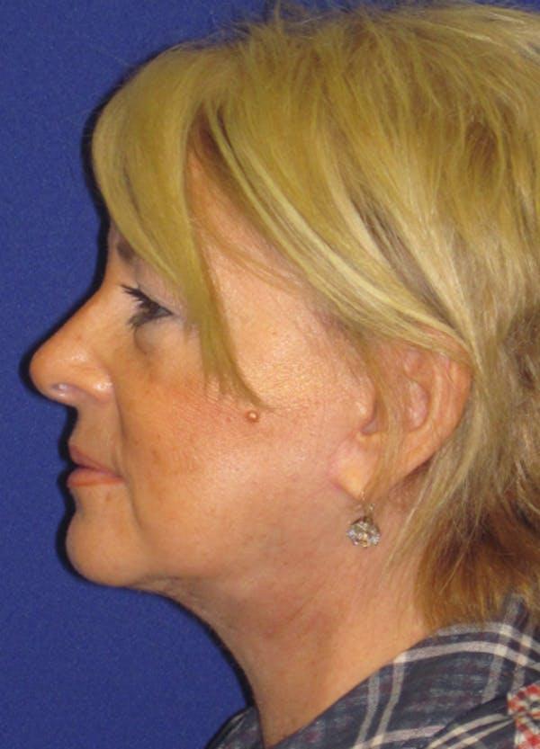 Facelift/Mini-Facelift Gallery - Patient 4889620 - Image 6