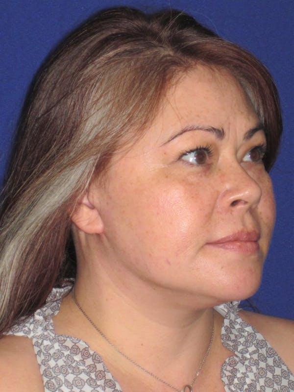 Facelift/Mini-Facelift Gallery - Patient 4889625 - Image 4