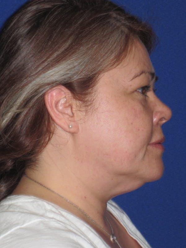 Facelift/Mini-Facelift Gallery - Patient 4889625 - Image 5