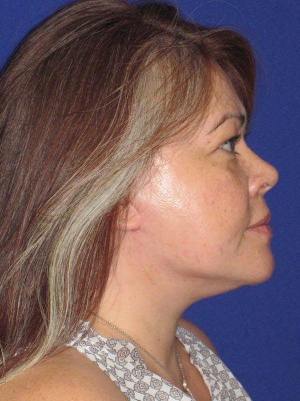 Facelift/Mini-Facelift Gallery - Patient 4889625 - Image 6