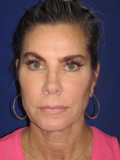 Facelift/Mini-Facelift Gallery - Patient 4889630 - Image 1