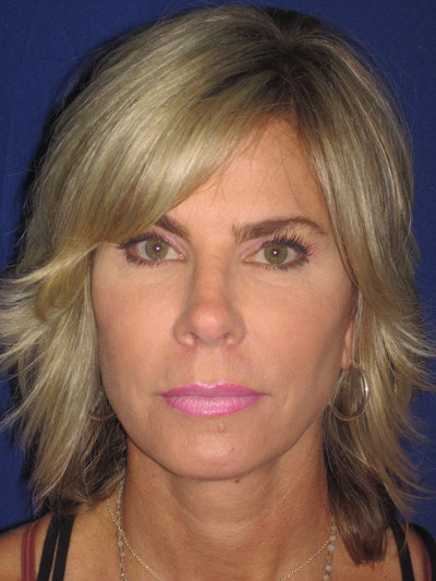 Facelift/Mini-Facelift Gallery - Patient 4889630 - Image 2