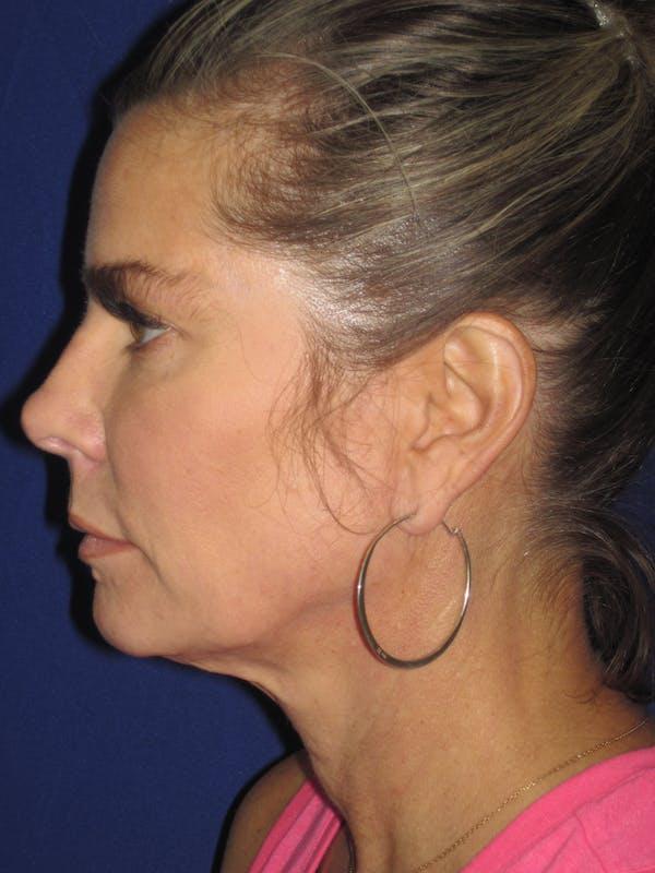 Facelift/Mini-Facelift Gallery - Patient 4889630 - Image 5