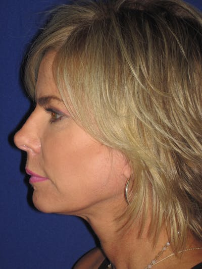 Facelift/Mini-Facelift Gallery - Patient 4889630 - Image 6