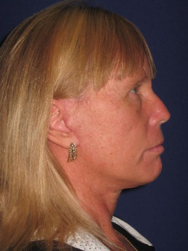 Facelift/Mini-Facelift Gallery - Patient 4889639 - Image 6