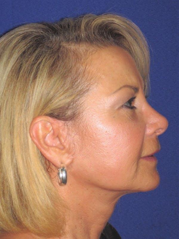 Facelift/Mini-Facelift Gallery - Patient 4889646 - Image 6