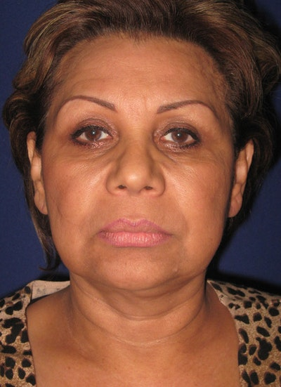 Facelift/Mini-Facelift Gallery - Patient 4889669 - Image 1