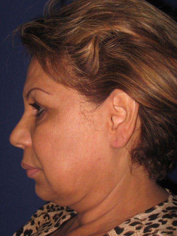 Facelift/Mini-Facelift Gallery - Patient 4889669 - Image 3