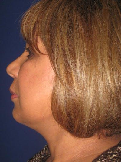 Facelift/Mini-Facelift Gallery - Patient 4889669 - Image 4