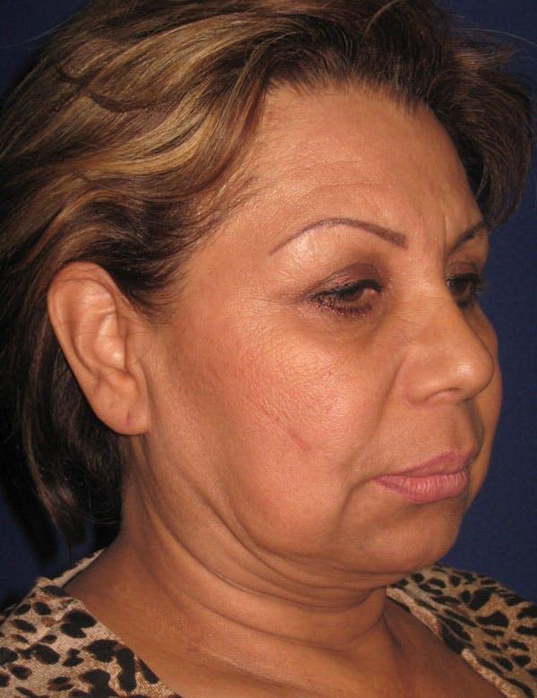 Facelift/Mini-Facelift Gallery - Patient 4889669 - Image 5