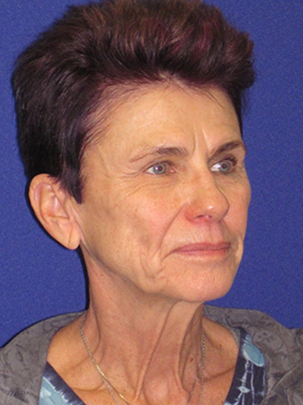 Facelift/Mini-Facelift Gallery - Patient 4889805 - Image 3