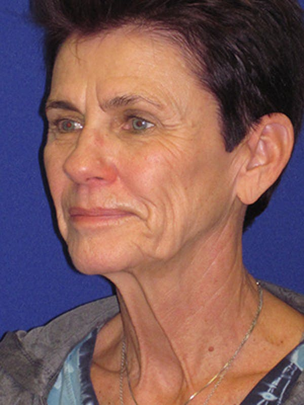 Facelift/Mini-Facelift Gallery - Patient 4889805 - Image 5