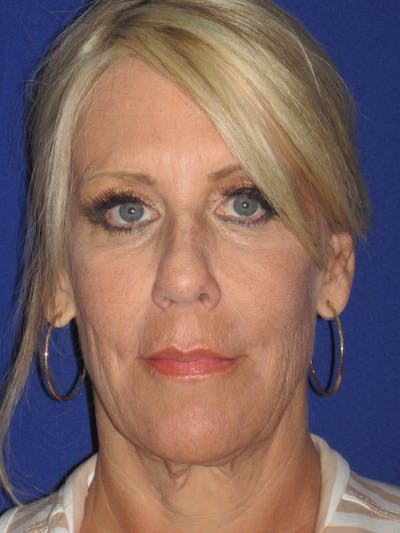 Facelift/Mini-Facelift Gallery - Patient 4889843 - Image 1