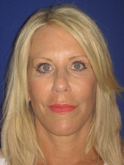Facelift/Mini-Facelift Gallery - Patient 4889843 - Image 2