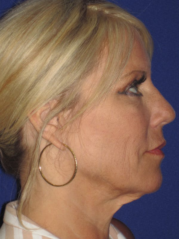 Facelift/Mini-Facelift Gallery - Patient 4889843 - Image 7