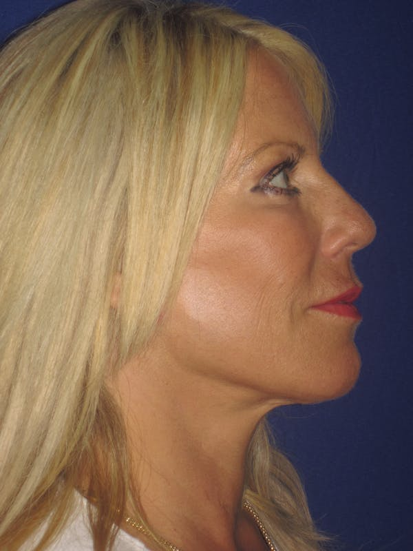 Facelift/Mini-Facelift Gallery - Patient 4889843 - Image 8