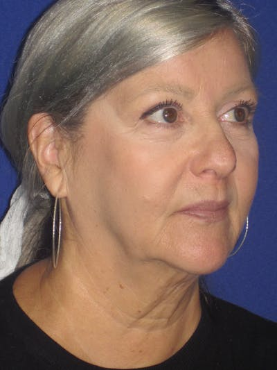 Facelift/Mini-Facelift Gallery - Patient 4890133 - Image 1