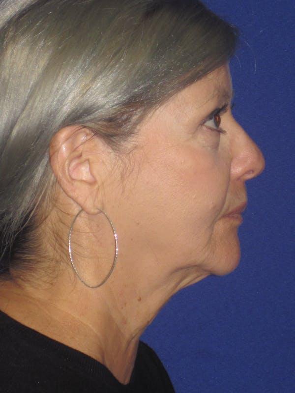 Facelift/Mini-Facelift Gallery - Patient 4890133 - Image 5