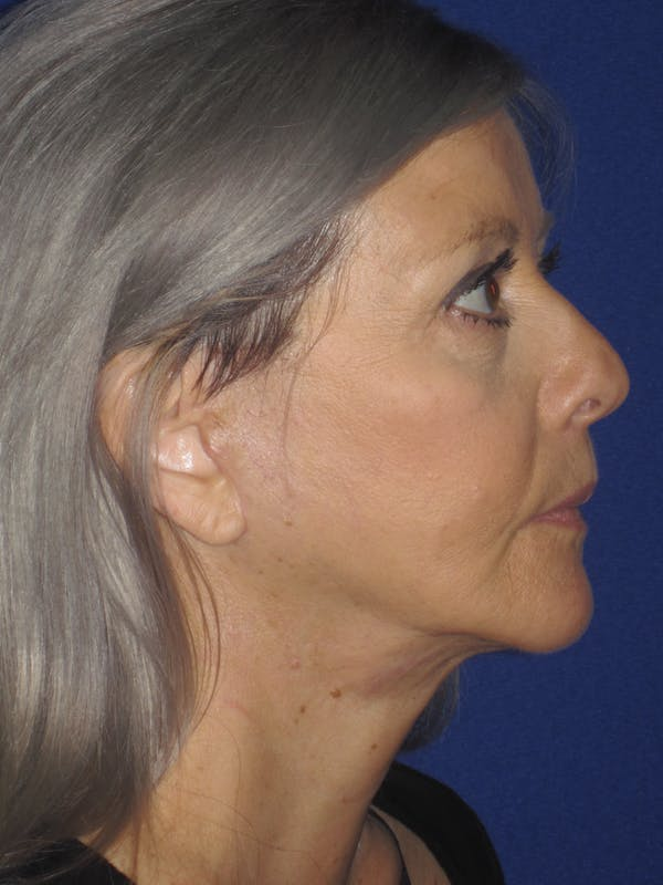 Facelift/Mini-Facelift Gallery - Patient 4890133 - Image 6