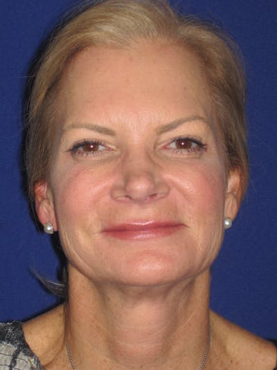 Facelift/Mini-Facelift Gallery - Patient 4890352 - Image 1