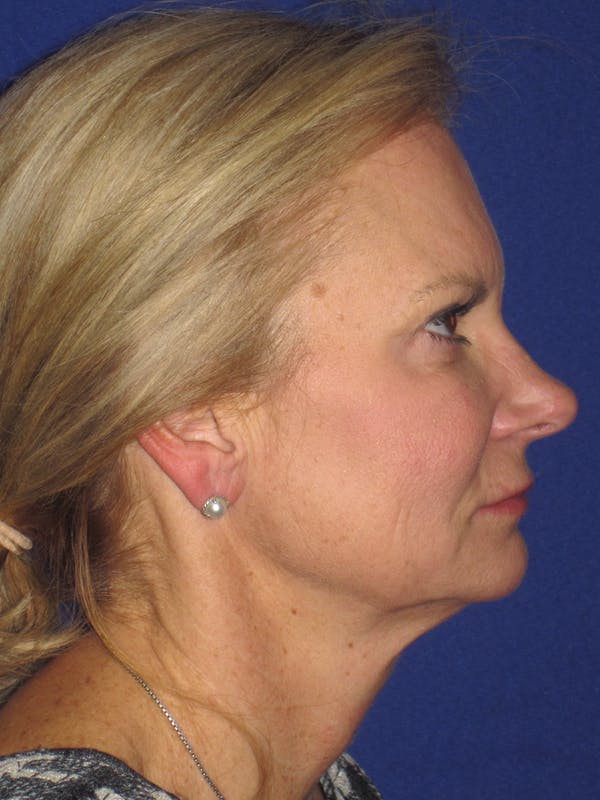 Facelift/Mini-Facelift Gallery - Patient 4890352 - Image 3