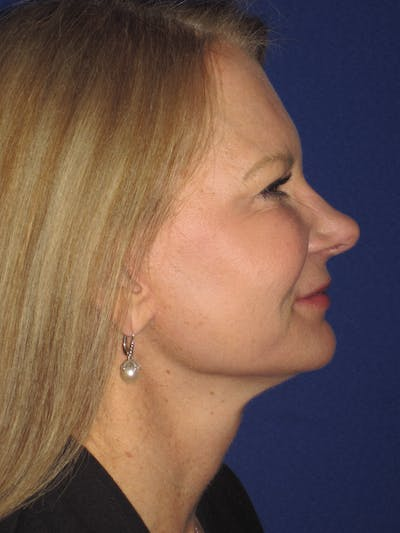 Facelift/Mini-Facelift Gallery - Patient 4890352 - Image 4