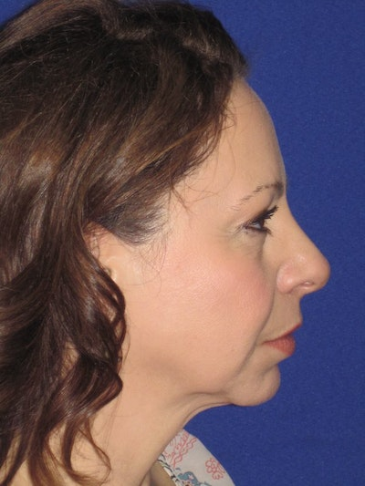 Facelift/Mini-Facelift Gallery - Patient 4890357 - Image 1
