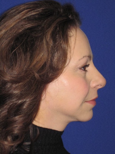 Facelift/Mini-Facelift Gallery - Patient 4890357 - Image 2