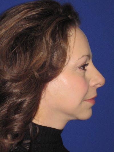Facelift/Mini-Facelift Gallery - Patient 4890357 - Image 2