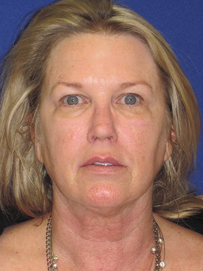 Facelift/Mini-Facelift Gallery - Patient 4890362 - Image 1
