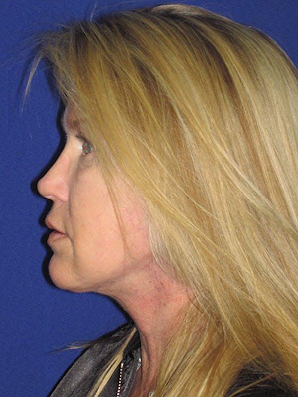 Facelift/Mini-Facelift Gallery - Patient 4890362 - Image 10