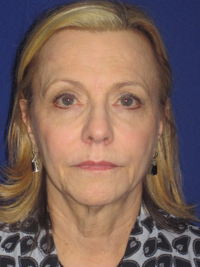 Facelift/Mini-Facelift Gallery - Patient 4890380 - Image 1